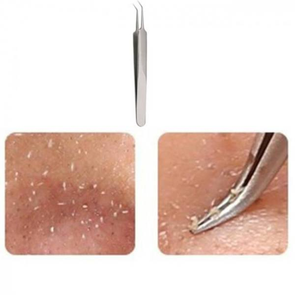 Useful stainless steel straight bend curved blackhead acne clip tweezer pimple comedone remover kit face cleaner