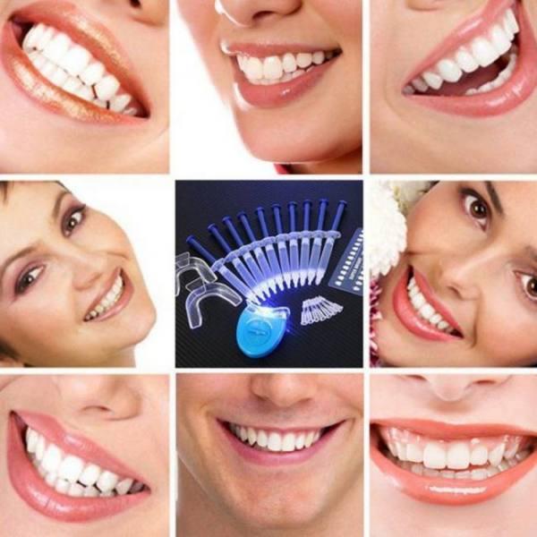 Laikou  dentist teeth whitening 44